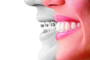 invisalign compare to braces